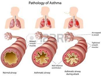 Verkramping van de luchtwegen door astma