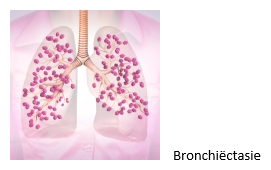 bronchiectasieen