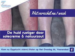 Zoutkamer Veenendaal helpt met solecreme en natuurzoutoplossing in korte tijd eczeem tegen gaan