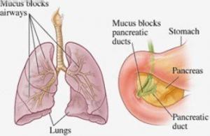 Medicijnvrije Behandeling van Cystic fibrose of taaislijmziekte